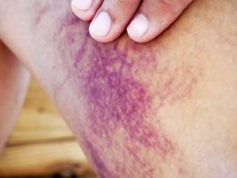 Henoch-Schönlein purpura: Causes, symptoms, and treatment