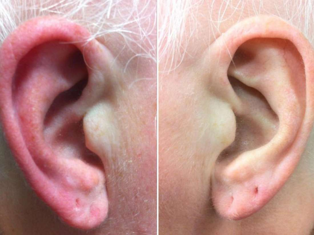Infected tragus piercing: Symptoms, treatment, and home remedies