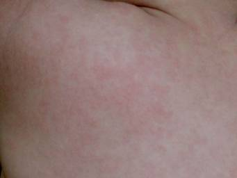 Rash after fever in toddlers: Causes and when to see a doctor