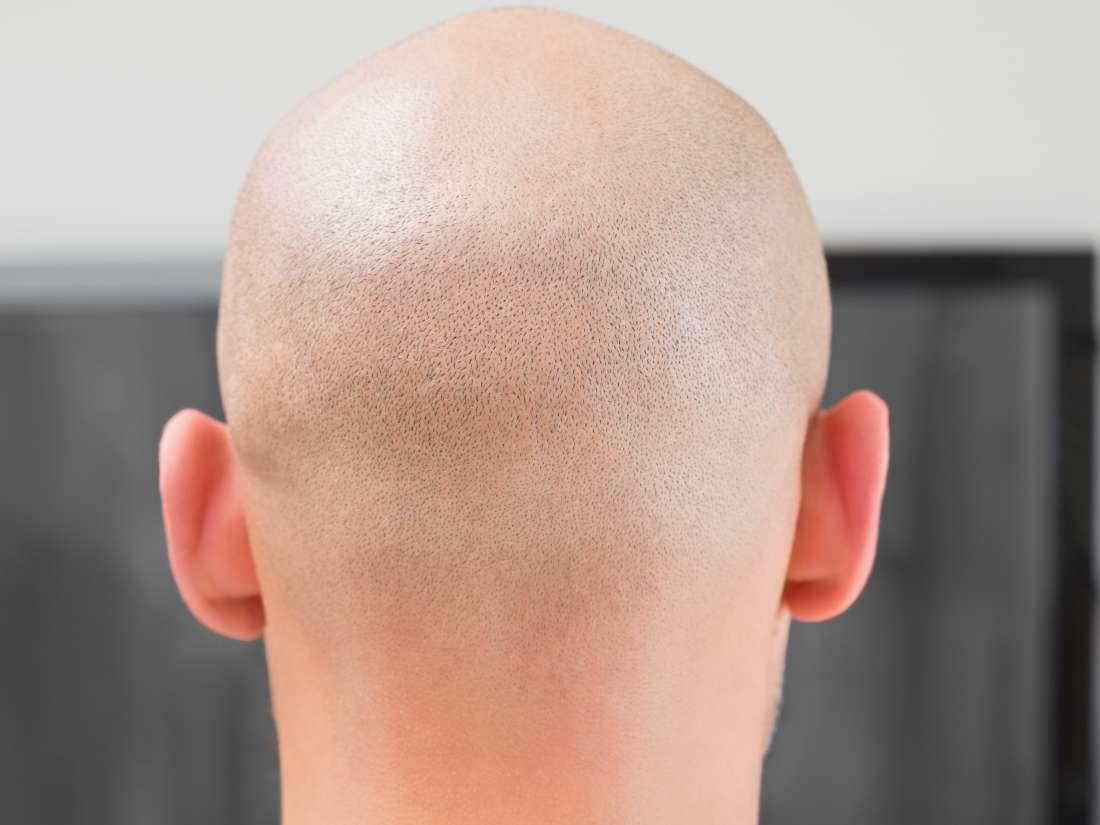 Крема за раст косе