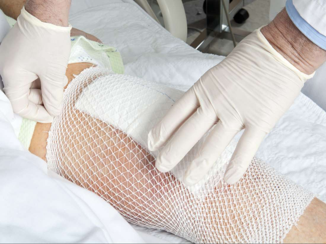 Knee injections or knee replacement: What are my options?