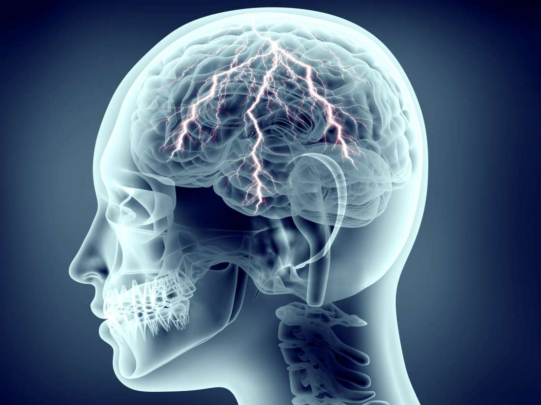 Epilepsy: Symptoms, causes, and treatments
