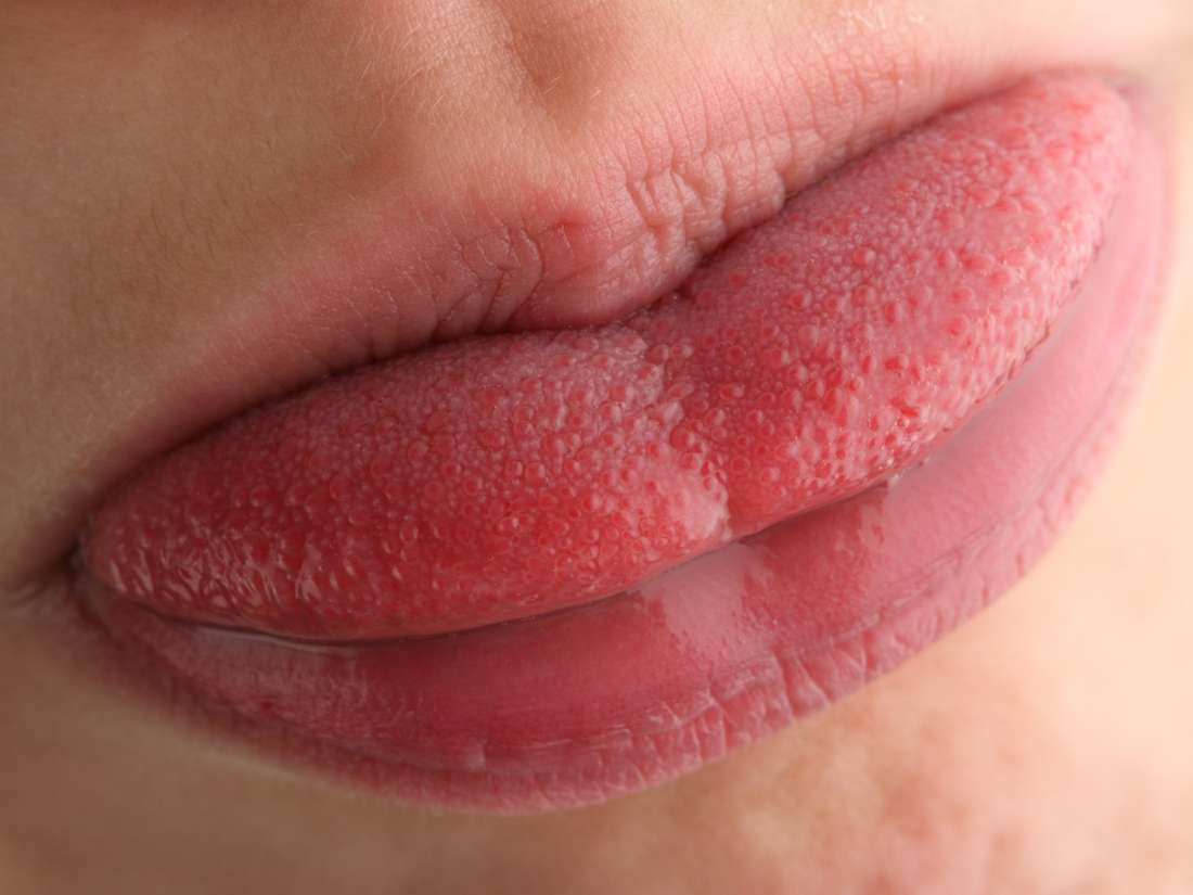 Yellow tongue: Causes, treatments, and when to see a doctor