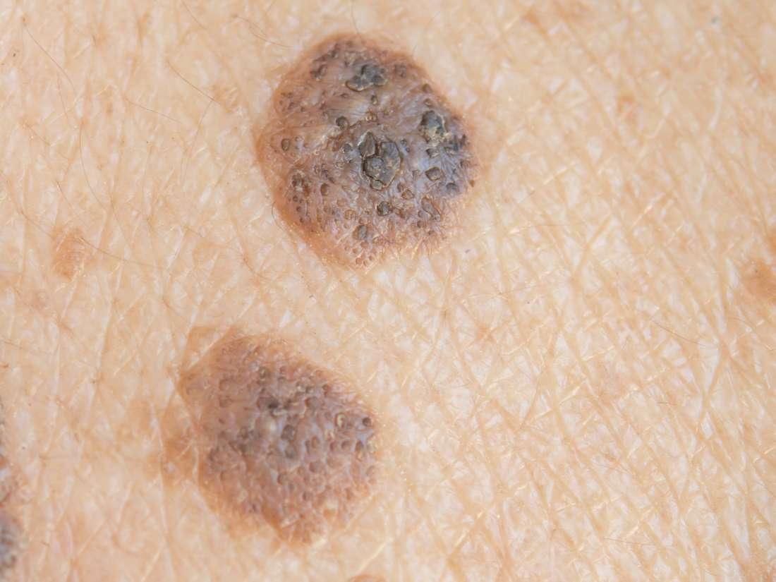 Nodular melanoma: Symptoms, risk factors, diagnosis, and