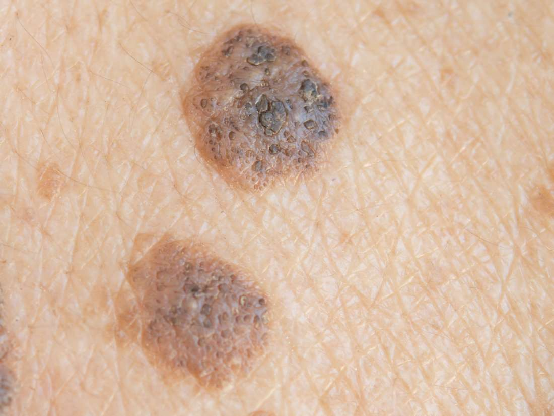 Seborrheic keratosis: Symptoms, treatment, and causes