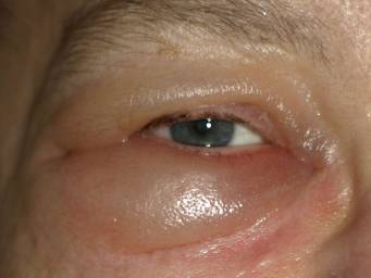 How do you get rid of puffy eyes?