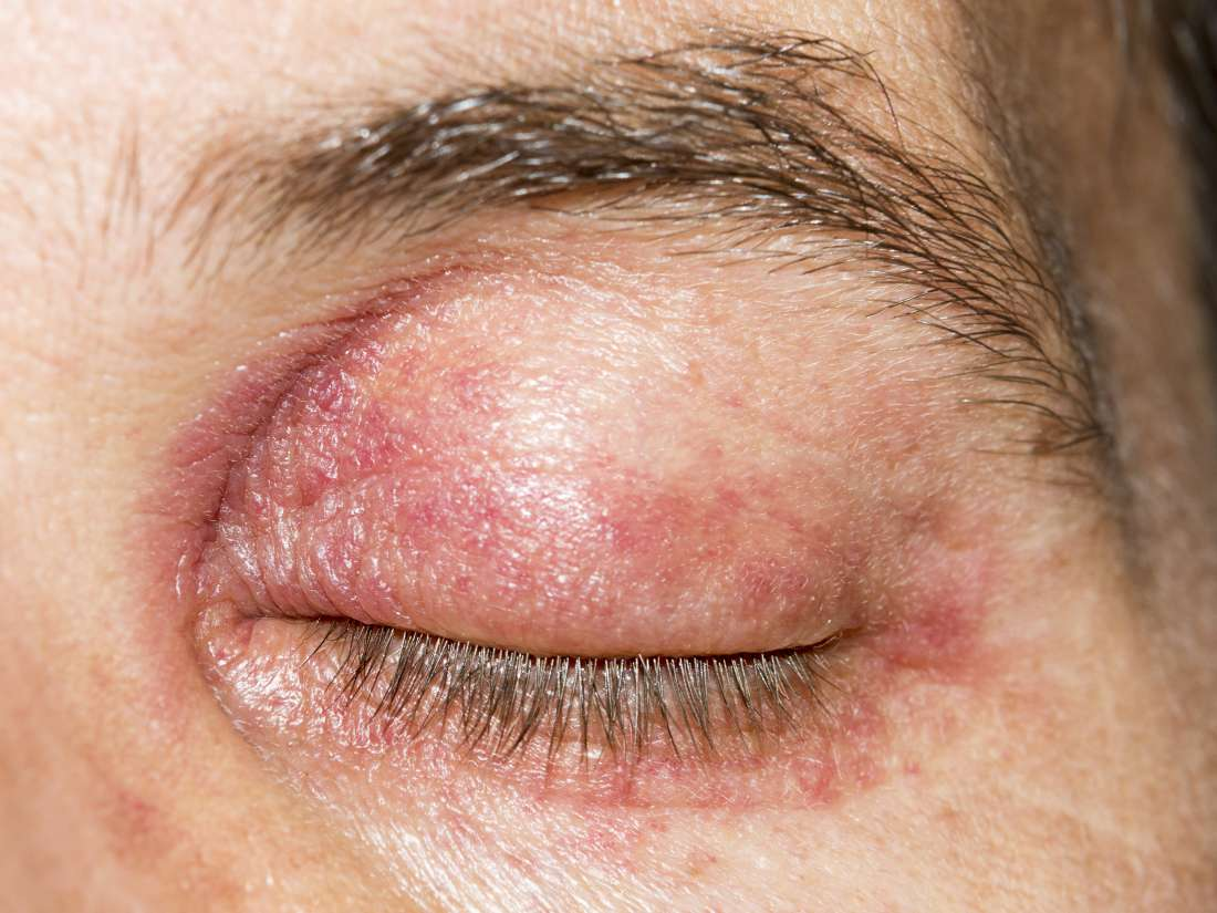 Heliotrope Rash Causes Pictures And Treatment