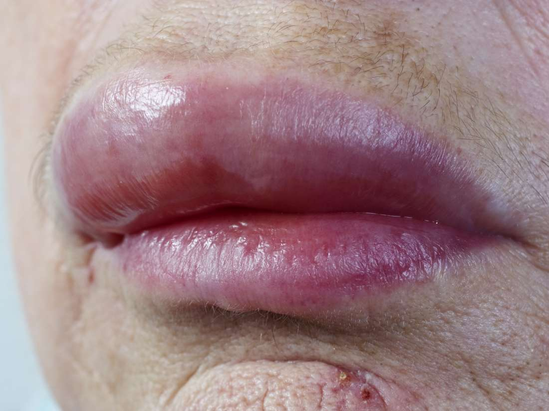 Newborn chapped lips: Treatment and causes