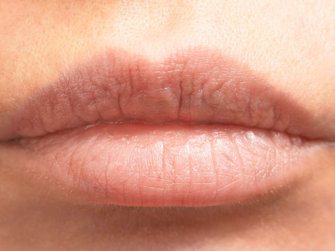How to treat your sunburned lips