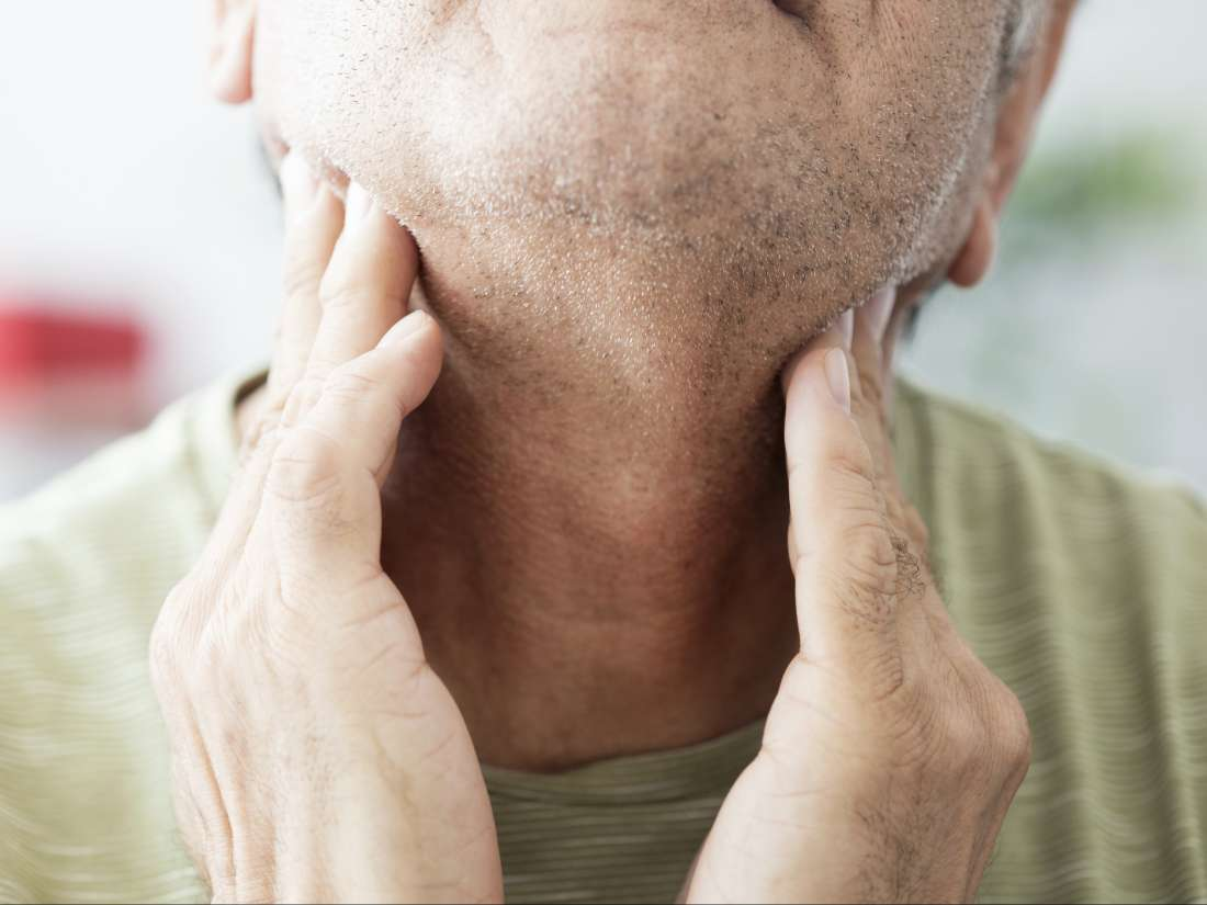 Tonsil stones: Causes, symptoms, and treatment
