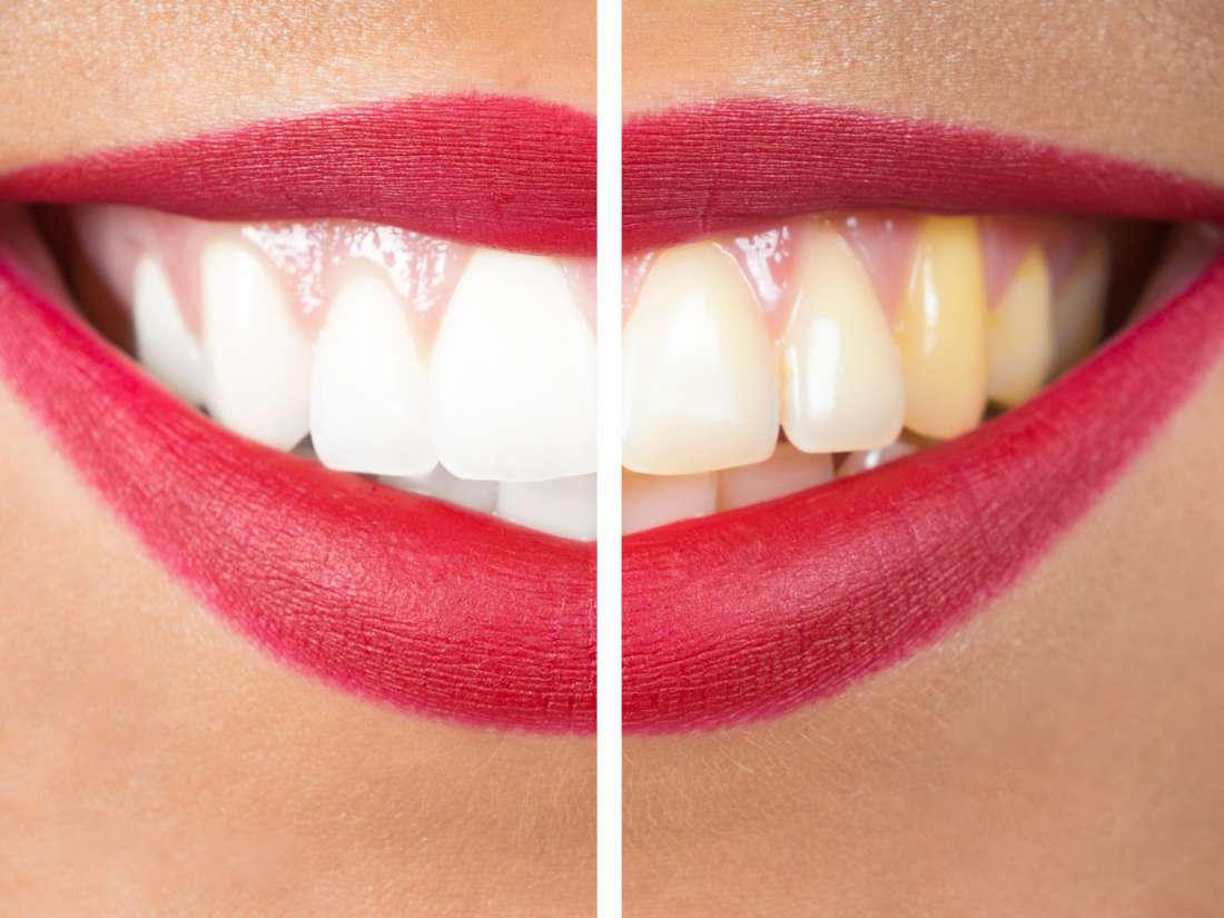 White gums: Causes, symptoms, and how to get rid of them