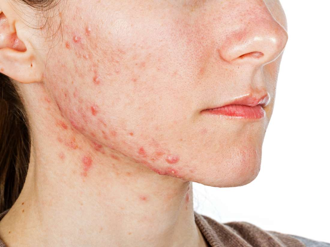 Hormonal Acne Causes And Treatment