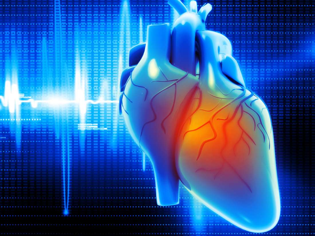 EKG results for A-fib: Characteristics, types, symptoms, and treatment