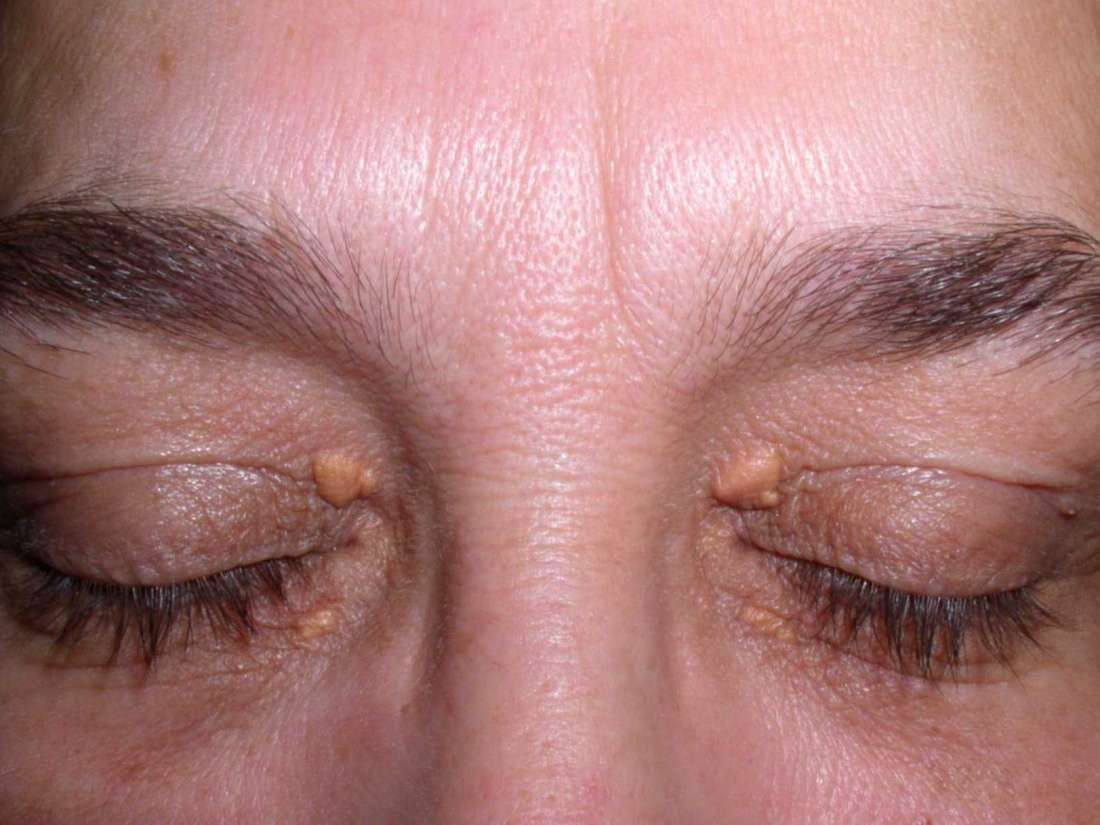 Eyelid twitch: Common causes, treatment, and prevention