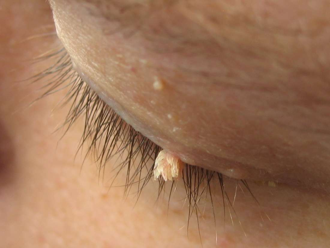 Periungual warts: Pictures, treatment, and prevention