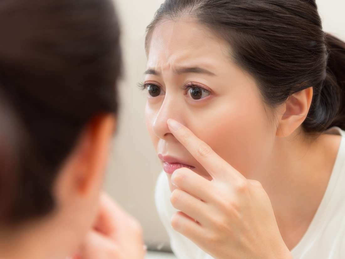 Blackhead removal: Things to consider