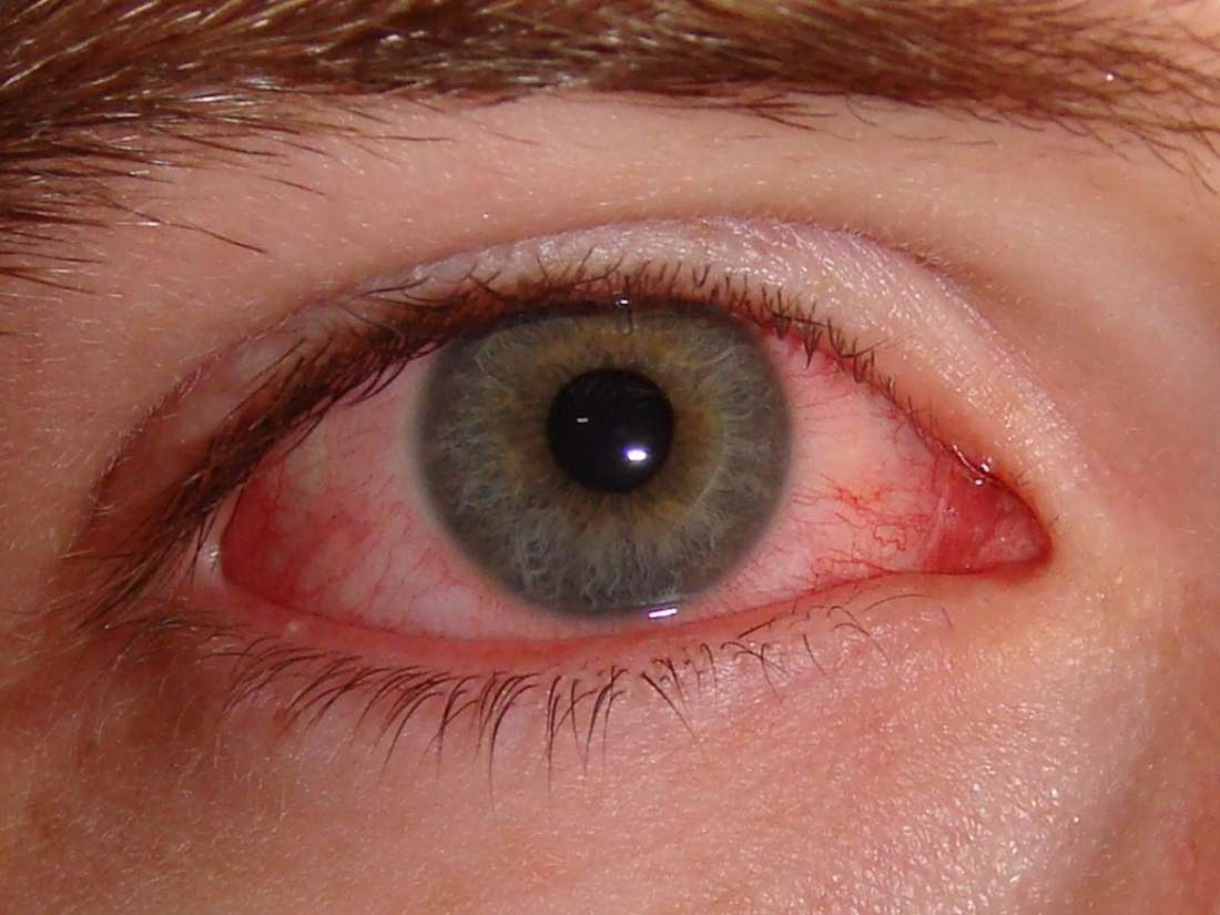 5 home remedies for pinkeye