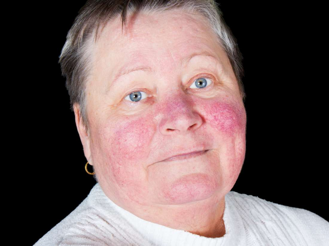 Rhinophyma: Causes, pictures, and treatment