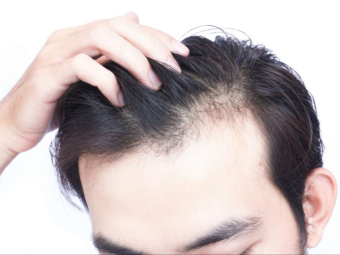 Thinning hair: Causes, types, treatment, and remedies