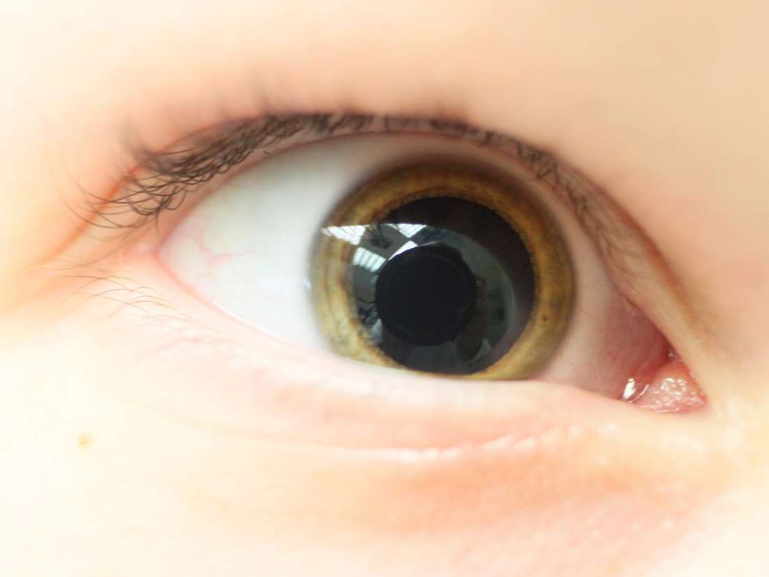 Mydriasis: Causes and treatment for dilated pupilsDilated Pupils Drugs