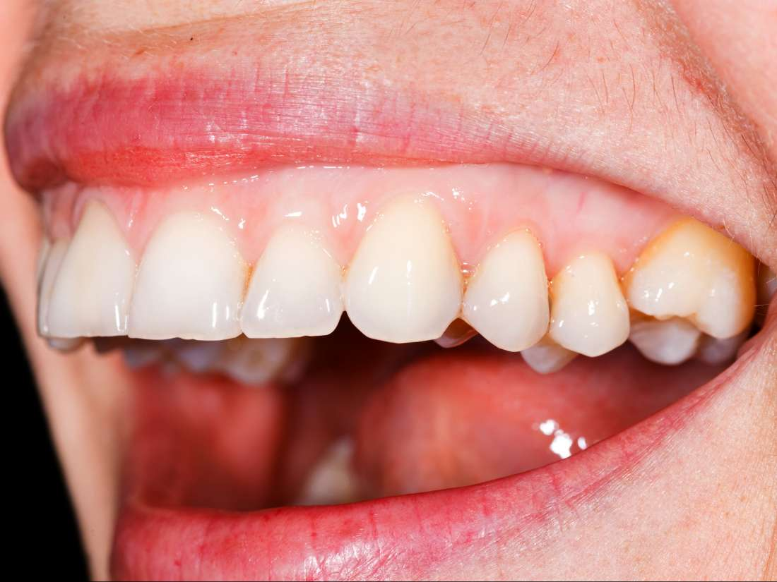 Gingivitis: Causes, symptoms, and treatment