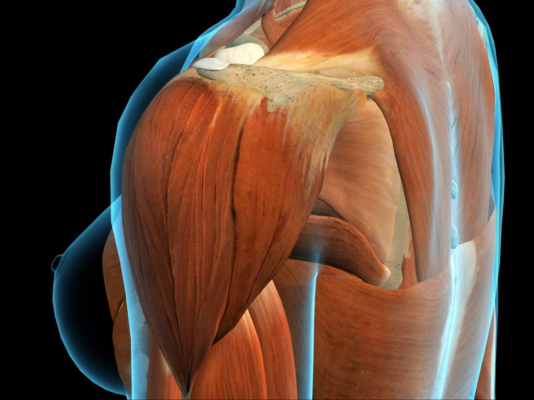 Deltoid Pain Causes Exercises And Relief
