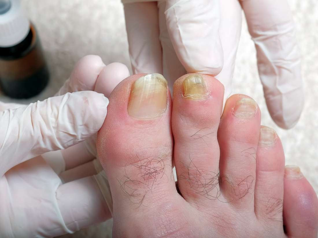 Why Are My Toenails Yellow Causes And Treatment