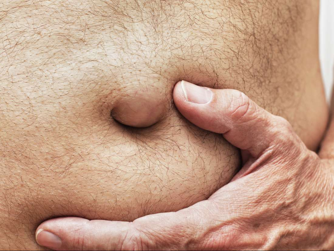 Spigelian hernia: Symptoms, diagnosis, and recovery