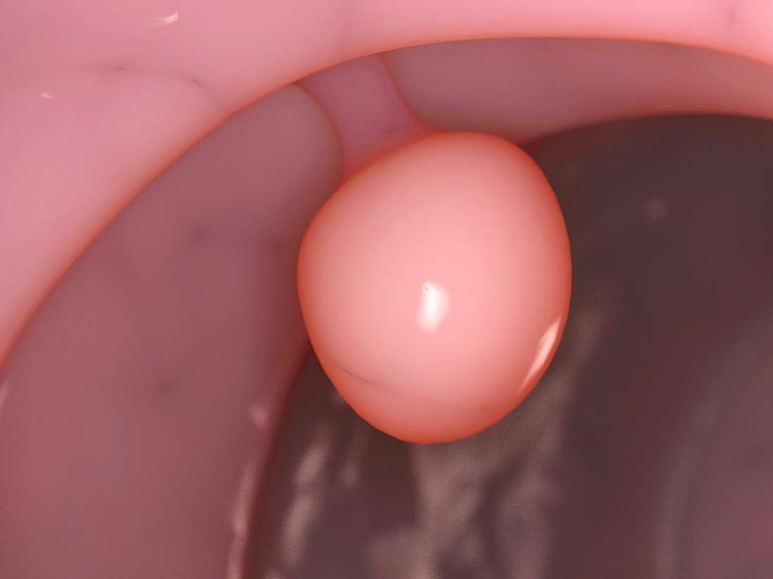 What Is A Cervical Polyp And How Do You Get One-5314