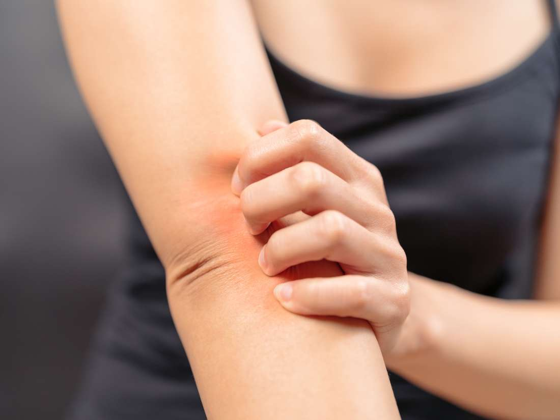 8 natural and home remedies for itching