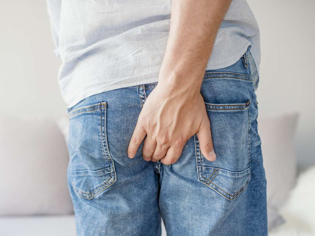 Hemorrhoid surgery: Purpose, types, and recovery