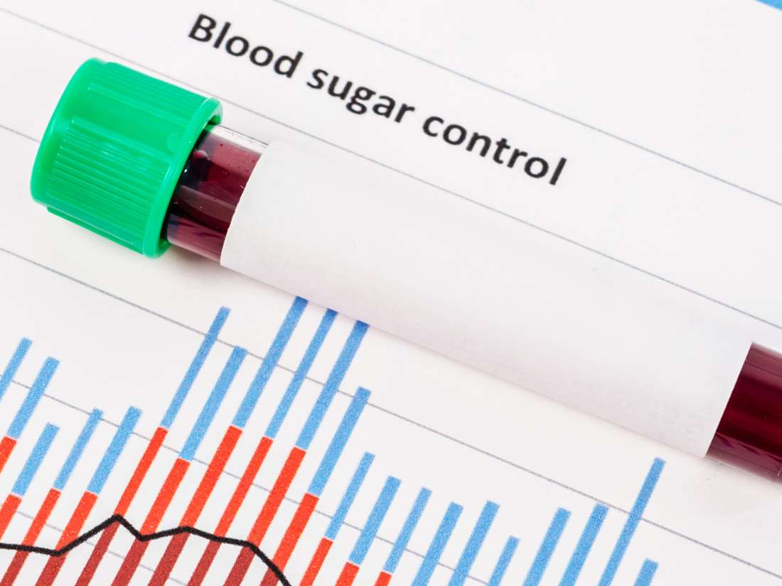 Random glucose testing: Normal levels and reasons for testing