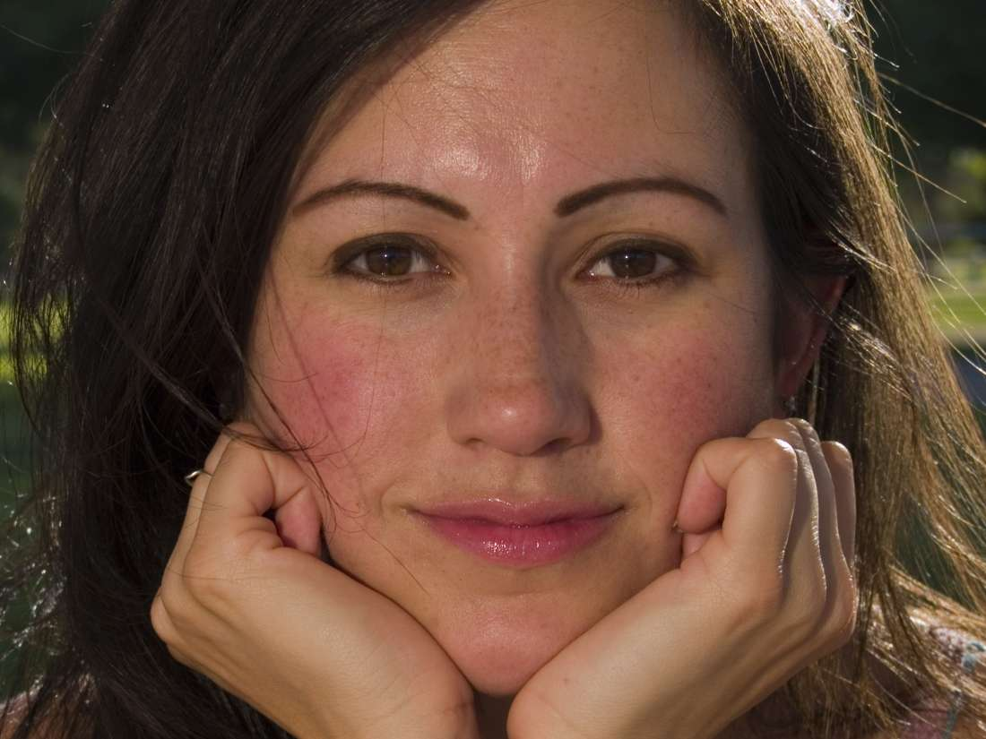 Scientists Discover Clues To Rosacea Skin Ailment