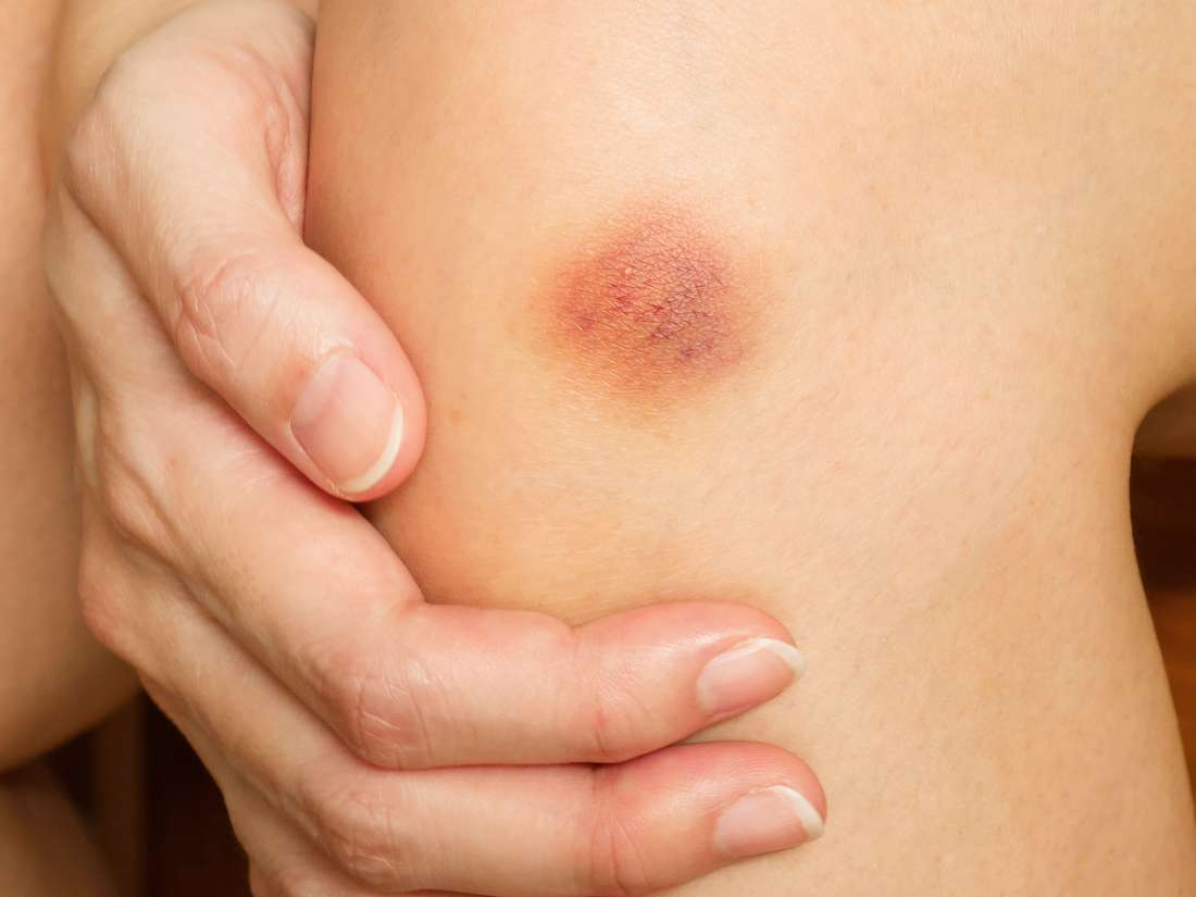 Bruising easily: 7 possible causes
