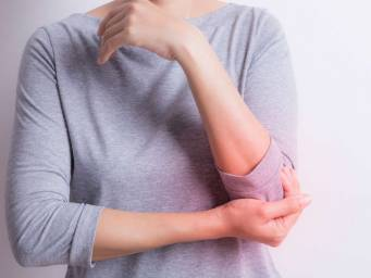 Lupus: Causes, symptoms, and research