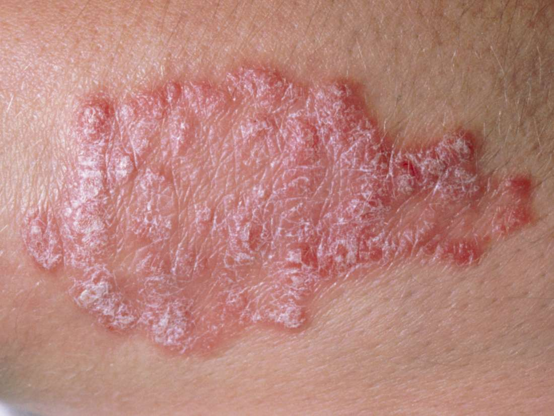 Psoriasis vs  pityriasis rosea: Symptoms and causes