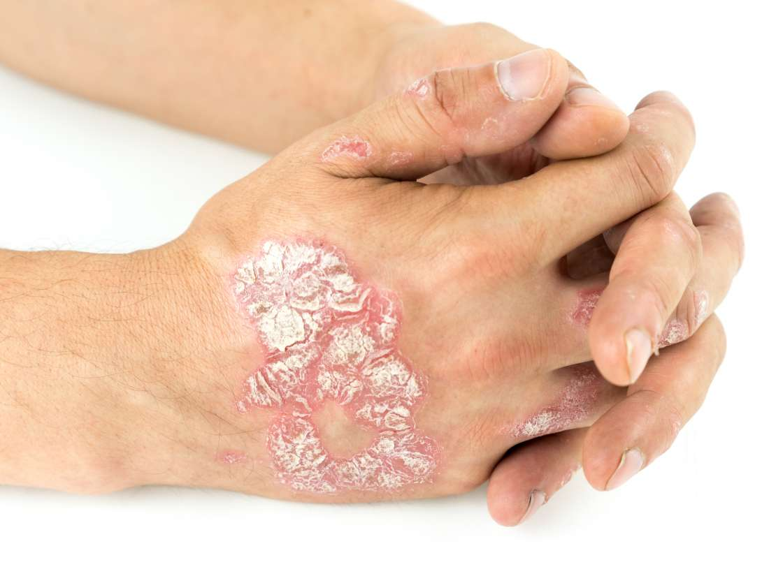 Psoriasis or skin cancer? How to tell the difference