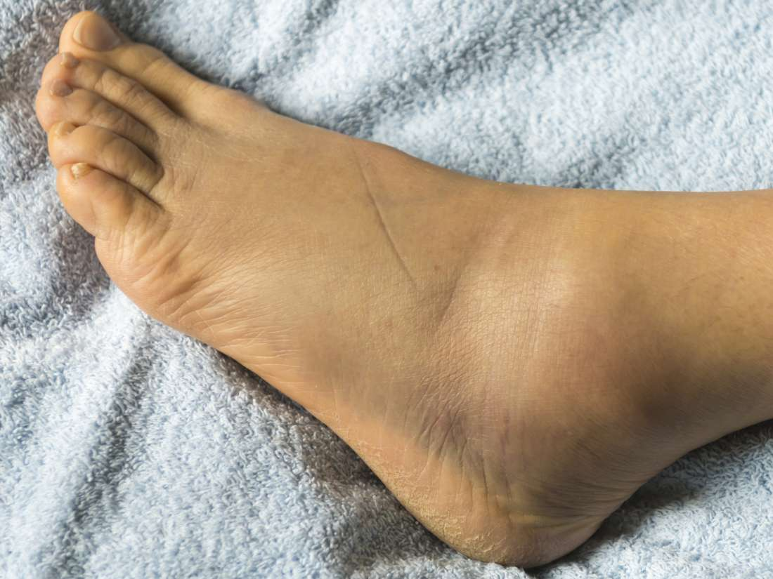 Swollen feet: 15 causes, treatments, and home remedies
