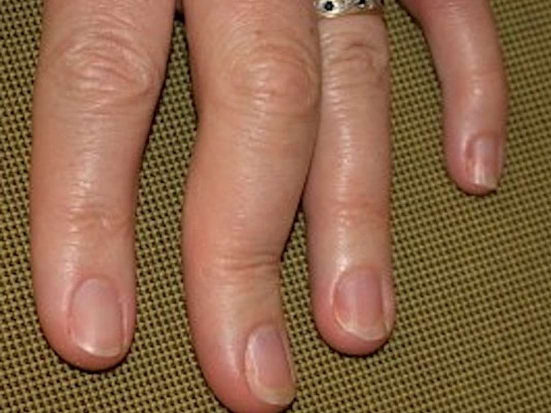 Psoriatic arthritis in the hands: Symptoms, pictures, and