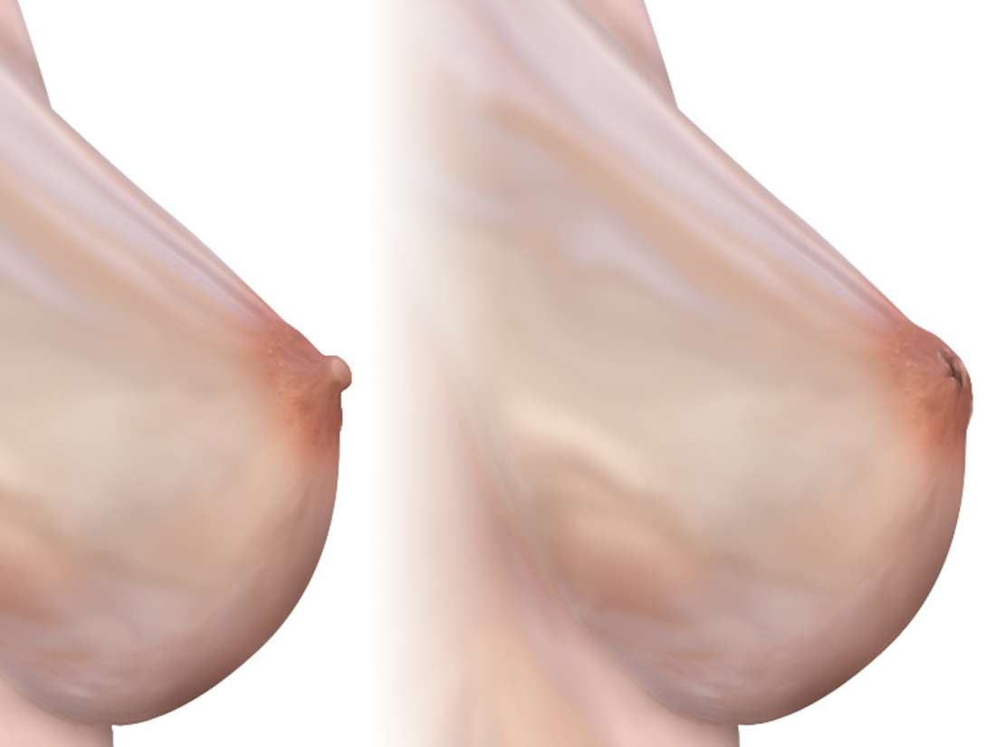 What to know about inverted nipples