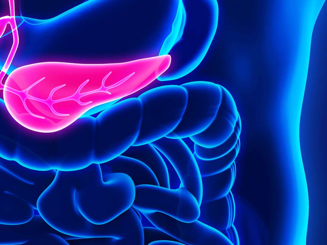 Pancreatic cancer: Two-hit treatment approach shows promise