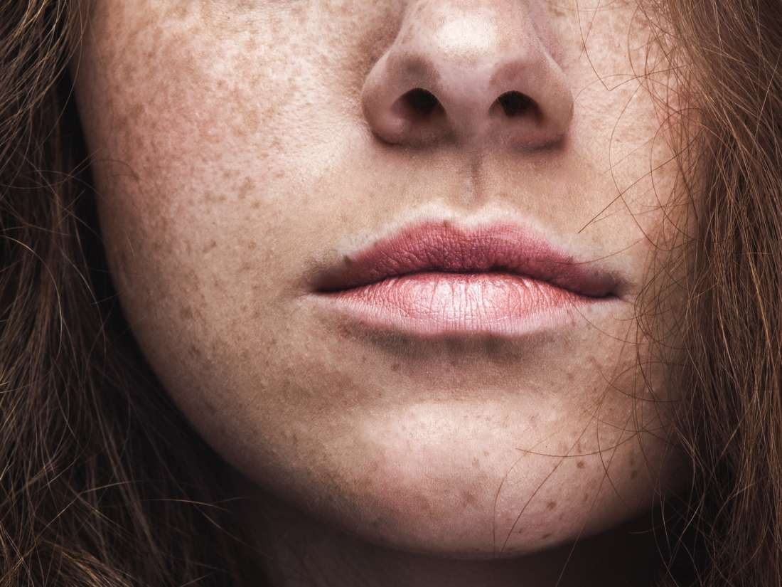 Dark Spots On The Skin Causes Treatments And Remedies