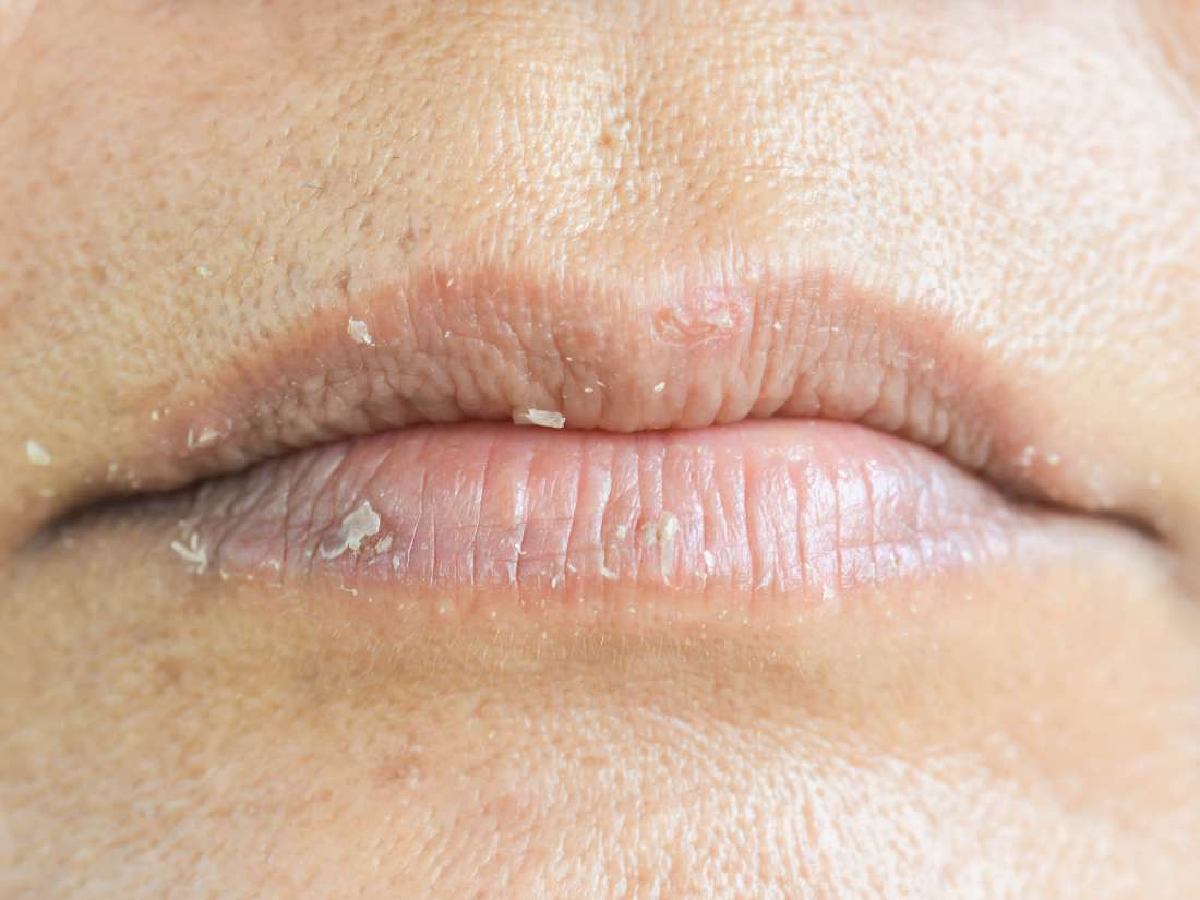 How to get rid of chapped lips: 6 ways