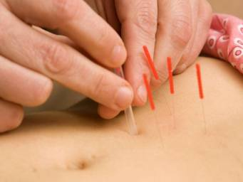 Acupuncture: How it works, uses, benefits, and risks