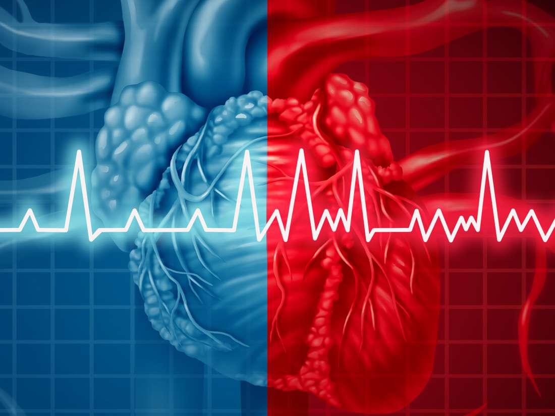 A-fib with RVR: Symptoms, diagnosis, and treatment