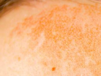 Dark spots on the skin: Causes, treatments, and remedies