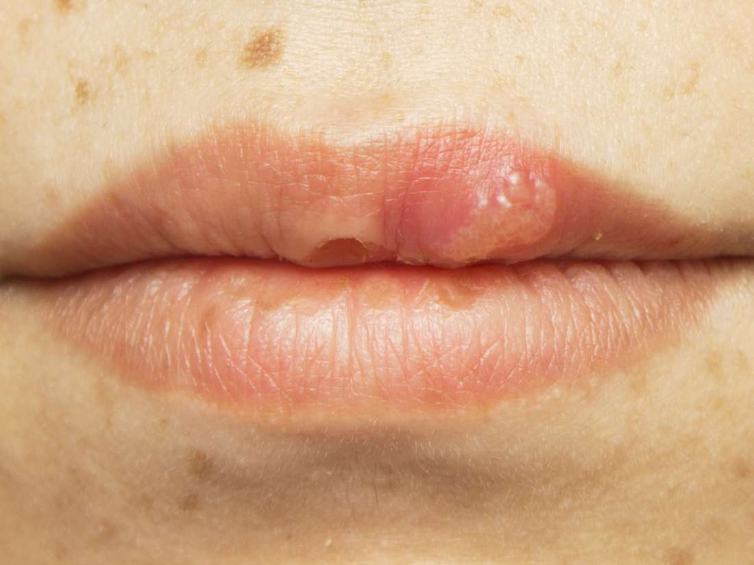 Hiv Mouth Sores Pictures Causes Treatment And Prevention