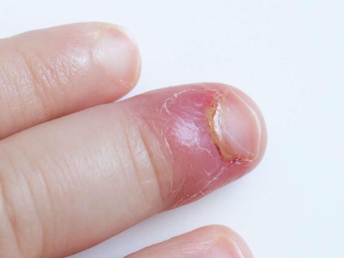 Paronychia: Causes and treatment of an infected nail