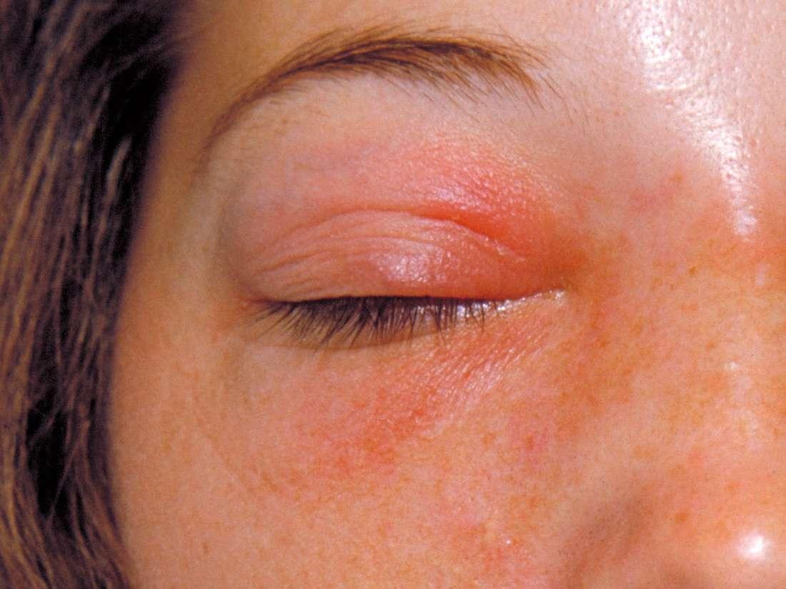 Orbital cellulitis: Symptoms, causes, and treatment