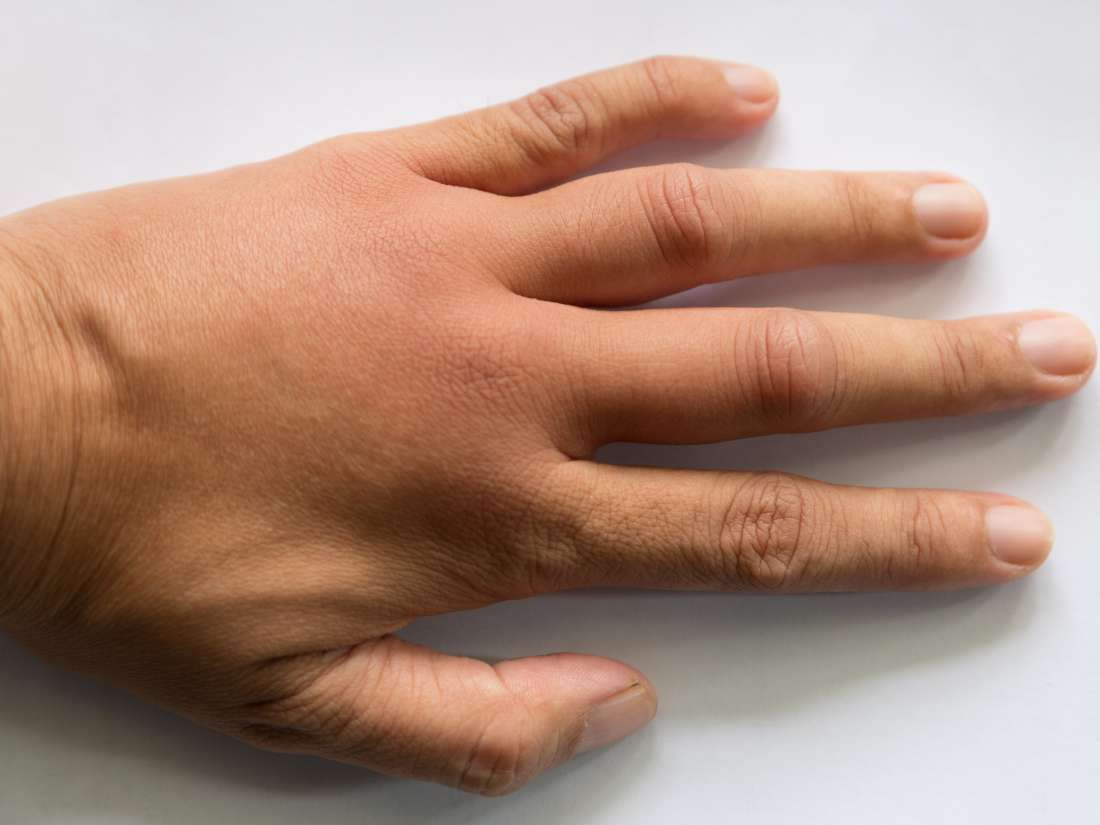 What Are The Causes Of Swollen Hands